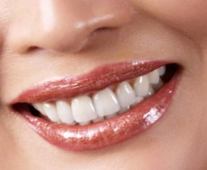 Dental Implants in Wichita